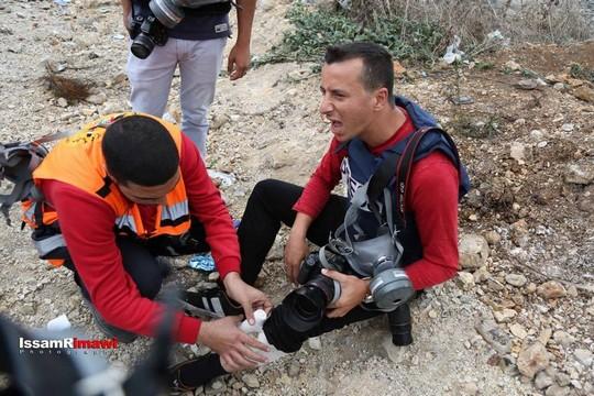 Journaliste palestinien blessé par une balle d'acier entouré de caoutchouc